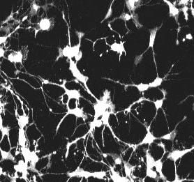 2-photon microscope image of neurons growing in vitro